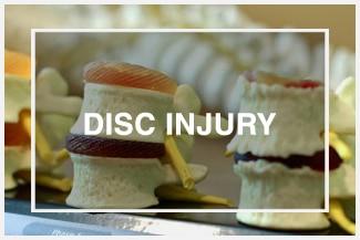 Chiropractic Stratford CT Disc Injury